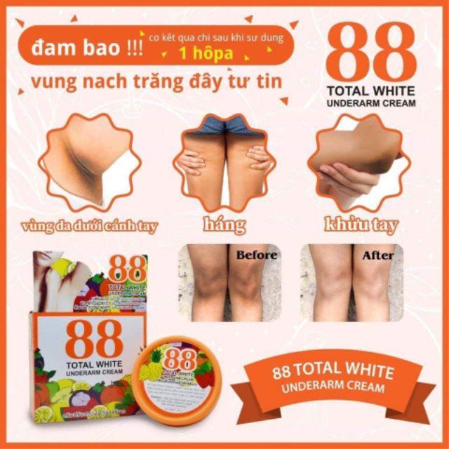 kem trị thâm 88 total white